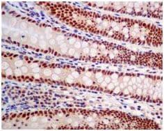 Immunohistochemistry (Formalin/PFA-fixed paraffin-embedded sections) - Anti-HDGF antibody [EPR7898] - BSA and Azide free (ab248221)