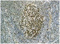 Immunohistochemistry (Formalin/PFA-fixed paraffin-embedded sections) - Anti-MCM3 antibody [EPR7080] - BSA and Azide free (ab248222)