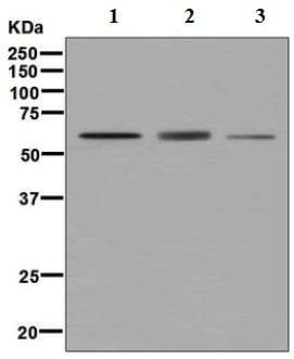 Western blot - Anti-DGKE antibody [EPR7847] - BSA and Azide free (ab248242)