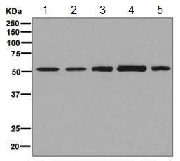 Western blot - Anti-PLAGL1 / ZAC antibody [EPR7523] - BSA and Azide free (ab248273)