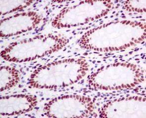 Immunohistochemistry (Formalin/PFA-fixed paraffin-embedded sections) - Anti-CtBP1 antibody [EPR6800] - BSA and Azide free (ab248335)