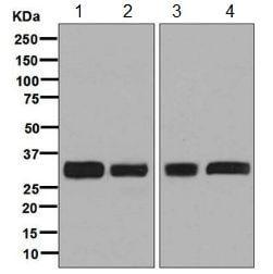 Western blot - Anti-PPP6C/Ppv antibody [EPR8764] - BSA and Azide free (ab248413)