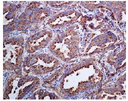 Immunohistochemistry (Formalin/PFA-fixed paraffin-embedded sections) - Anti-NAPSIN A antibody [EPR6252] - BSA and Azide free (ab248424)