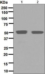 Western blot - Anti-MUM1 antibody [EPR5654(2)] - BSA and Azide free (ab248453)