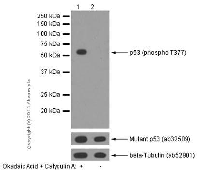 Western blot - Anti-p53 (phospho T377) antibody [EPR5678] - BSA and Azide free (ab248500)