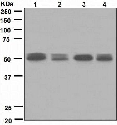 Western blot - Anti-Activin A Receptor Type IB/ALK-4 antibody [EPR4816] - BSA and Azide free (ab248514)