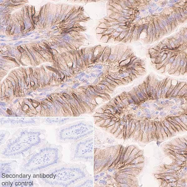 Immunohistochemistry (Formalin/PFA-fixed paraffin-embedded sections) - Anti-NDRG1 antibody [EPR5592] - BSA and Azide free (ab248558)