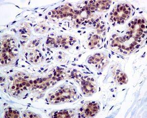Immunohistochemistry (Formalin/PFA-fixed paraffin-embedded sections) - Anti-Casein Kinase 2 beta antibody [EPR1994] - BSA and Azide free (ab248559)