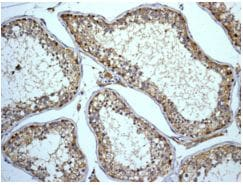Immunohistochemistry (Formalin/PFA-fixed paraffin-embedded sections) - Anti-ABI2 antibody [EPR7069] - BSA and Azide free (ab248570)