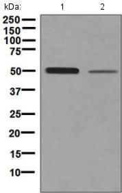 Western blot - Anti-Netrin G2 antibody [EPR4570(2)] - BSA and Azide free (ab248632)