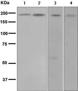 Western blot - Anti-DENN antibody [EPR4919] - BSA and Azide free (ab248688)