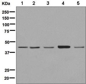 Western blot - Anti-EDAR antibody [EPR8020] - BSA and Azide free (ab248770)