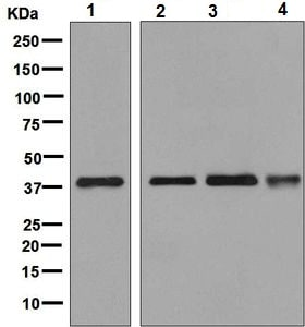 Western blot - Anti-ALS2CR1 antibody [EPR9335] - BSA and Azide free (ab248781)
