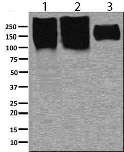 Western blot - Anti-NCAM1 antibody [EP2566(2)] - BSA and Azide free (ab248809)