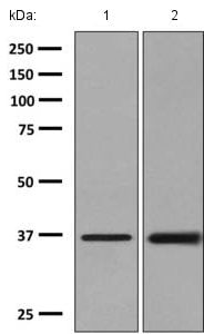 Western blot - Anti-AKR1B10 antibody [EPR9767(B)] - BSA and Azide free (ab248881)