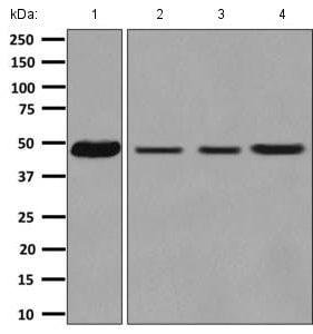 Western blot - Anti-CSN4 antibody [EPR7453] - BSA and Azide free (ab248882)
