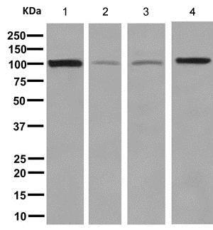 Western blot - Anti-EXOC2 antibody [EPR9420] - BSA and Azide free (ab248907)