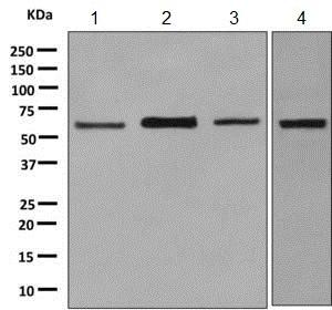 Western blot - Anti-TFIIE alpha/GTF2E1 antibody [EPR8377(2)] - BSA and Azide free (ab248917)