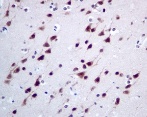 Immunohistochemistry (Formalin/PFA-fixed paraffin-embedded sections) - Anti-CMT2 antibody [EPR9584] - BSA and Azide free (ab248941)