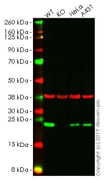 Western blot - Anti-Mad2L1 antibody [EPR9853(B)] - BSA and Azide free (ab248948)