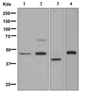 Western blot - Anti-ARSB antibody [EPR9409] - BSA and Azide free (ab248950)