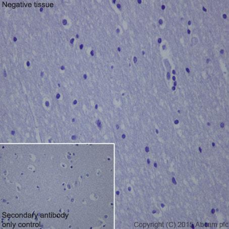 Immunohistochemistry (Formalin/PFA-fixed paraffin-embedded sections) - Anti-HSPB7 antibody [EPR10106(B)] - BSA and Azide free (ab248960)