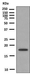 Western blot - Anti-HSPB7 antibody [EPR10106(B)] - BSA and Azide free (ab248960)