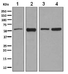 Western blot - Anti-TOX3 antibody [EPR6173(2)(B)] - BSA and Azide free (ab248997)