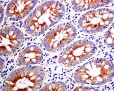 Immunohistochemistry (Formalin/PFA-fixed paraffin-embedded sections) - Anti-KIF5B antibody [EPR10277(B)] - BSA and Azide free (ab249004)