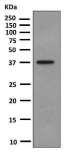 Western blot - Anti-GCP2 antibody [EPR8840] - BSA and Azide free (ab249048)