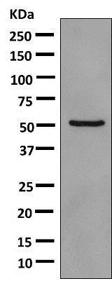 Western blot - Anti-PDE7A/HCP1 antibody [EPR7731] - BSA and Azide free (ab249158)