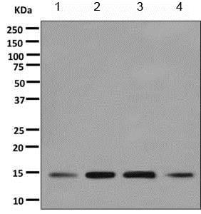 Western blot - Anti-UBC4 antibody [EPR11031(B)] - BSA and Azide free (ab249183)