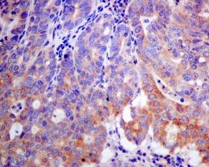 Immunohistochemistry (Formalin/PFA-fixed paraffin-embedded sections) - Anti-K23 antibody [EPR10943] - BSA and Azide free (ab249264)