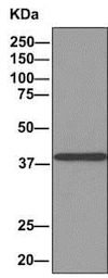 Immunoprecipitation - Anti-ACOT7 antibody [EPR11317(B)] - BSA and Azide free (ab249270)