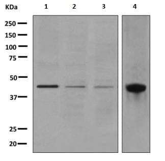Western blot - Anti-Junctional Adhesion Molecule 2/JAM-B antibody [EPR2489(2)] - BSA and Azide free (ab249274)