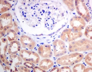 Immunohistochemistry (Formalin/PFA-fixed paraffin-embedded sections) - Anti-CBR1 antibody [EPR9660] - BSA and Azide free (ab249278)