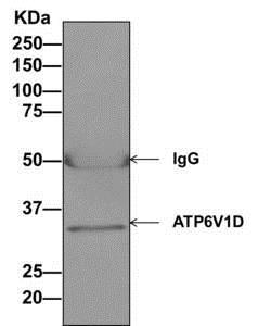 Immunoprecipitation - Anti-ATP6V1D antibody [EPR11326(B)] - BSA and Azide free (ab249327)