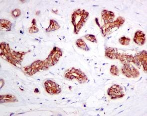 Immunohistochemistry (Formalin/PFA-fixed paraffin-embedded sections) - Anti-ATP6V1D antibody [EPR11326(B)] - BSA and Azide free (ab249327)