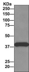 Immunoprecipitation - Anti-ZNF365 antibody [EPR10216] - BSA and Azide free (ab249328)