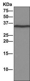 Immunoprecipitation - Anti-DNAJC9 antibody [EPR9856] - BSA and Azide free (ab249352)