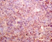 Immunohistochemistry (Formalin/PFA-fixed paraffin-embedded sections) - Anti-sPLA2-X antibody [EPR11202] - BSA and Azide free (ab249370)