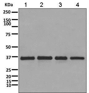 Western blot - Anti-CAPZA1 antibody [EPR11210] - BSA and Azide free (ab249376)