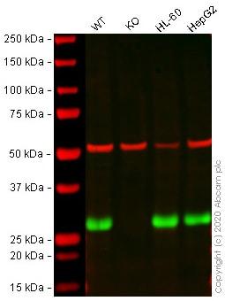 Western blot - Anti-AK2 antibody [EPR11388(B)] - BSA and Azide free (ab249383)
