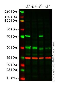 Western blot - Anti-SLC25A13/Citrin antibody [EPR9969(B)] - BSA and Azide free (ab249408)