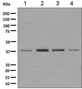 Western blot - Anti-MRPS31 antibody [EPR10707] - BSA and Azide free (ab249421)