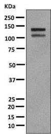 Western blot - Anti-H Cadherin antibody [EPR9621] - BSA and Azide free (ab249422)