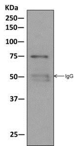 Immunoprecipitation - Anti-Moesin antibody [EPR2429(2)] - BSA and Azide free (ab249530)