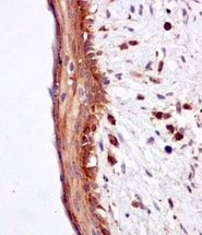 Immunohistochemistry (Formalin/PFA-fixed paraffin-embedded sections) - Anti-Proteasome maturation protein antibody [EPR10177] - BSA and Azide free (ab249548)