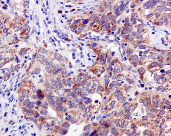 Immunohistochemistry (Formalin/PFA-fixed paraffin-embedded sections) - Anti-PPOX antibody [EPR10401] - BSA and Azide free (ab249564)