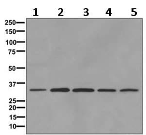 Western blot - Anti-IGFBP7 antibody [EPR11913(B)] - BSA and Azide free (ab249603)